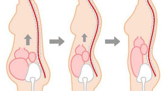 内臓の位置改善