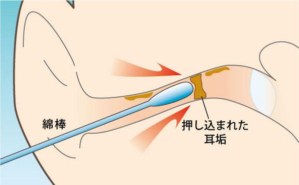 耳垢栓塞の原因