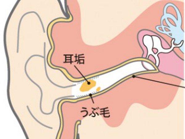耳垢の発生場所