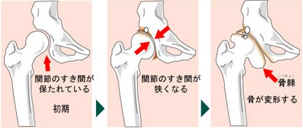 変形股関節症の進行