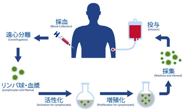 免疫細胞療法の基本的手順