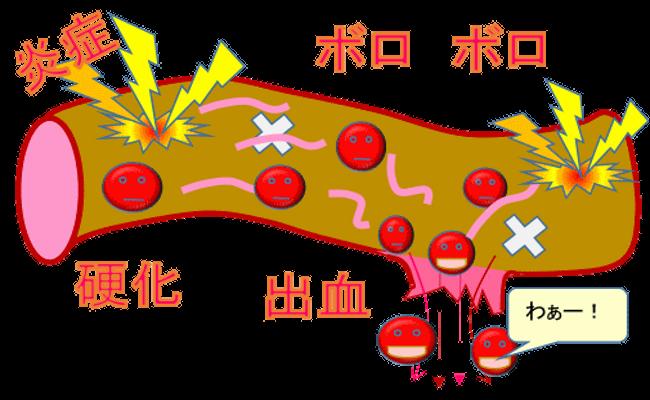 血管の老化
