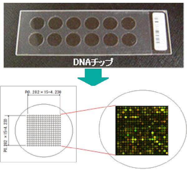 サインポスト遺伝子検査