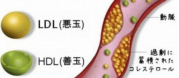 LDLと高血圧