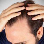 薄毛の予防・改善『4つの原因と対策』が髪を太く強く変える